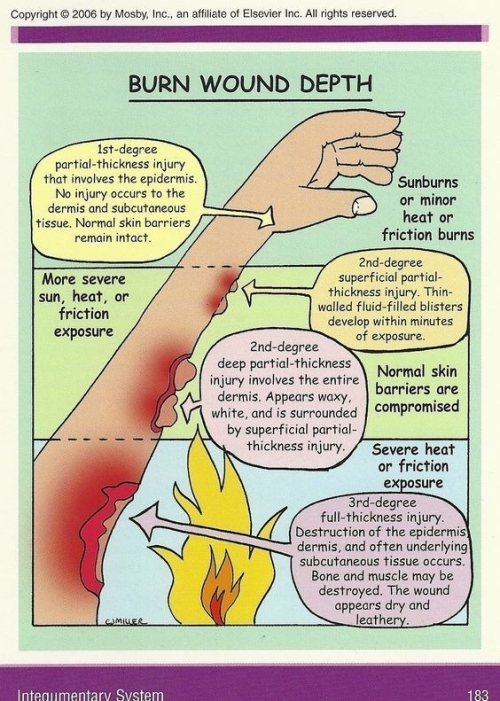 Burn wound depth