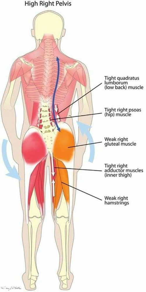 High right pelvis, and all the pains and aches that accompanies it