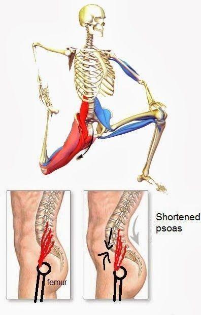 Shorten psoas