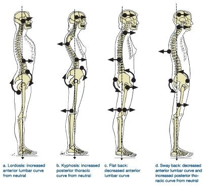 Reclaiming your posture
