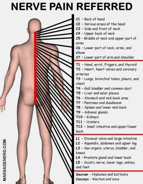 Nerve pain referred